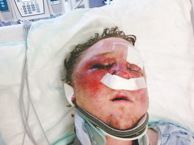 Dallas man comforted by federal charge in brutal beating ...