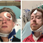 Gay couple attacked in Austin